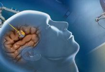 neuroblate system 1